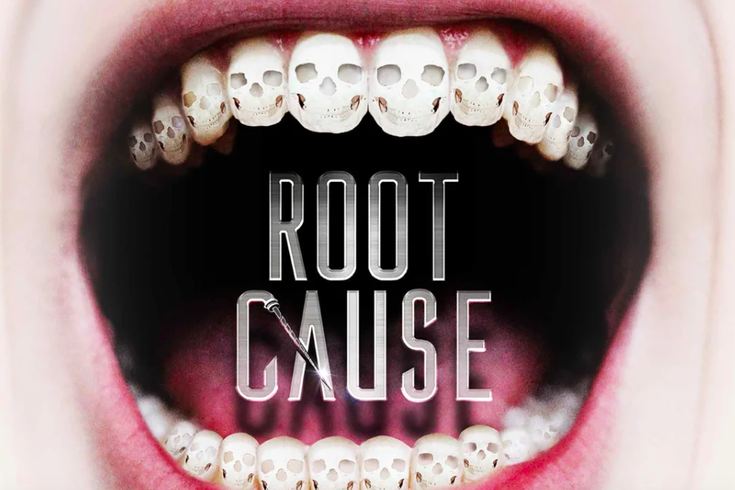 The importance of removing root canal teeth and Nutritional Balancing